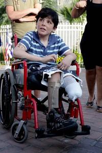 Israeli_boy_Osher_Twito_clost_leg_Qassam_Sderot_Israel