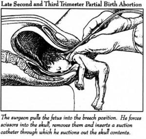 partial-birth_abortion